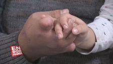 Ayak parmakları eline nakledilen işçi kızının elini rahat tutabiliyor
