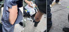 Çinli protestocunun attığı ateşli ok polise saplandı