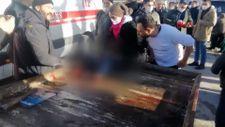 Yangın'da annesini kaybeden Oktay'ın iki el, bileklerinden kesildi