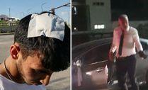 Sivas'ta bahşiş için düğün konvoyunun önünü kesen gençleri dövdüler