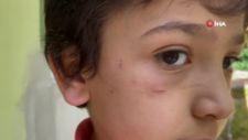 Bursa'da sokak köpeği 8 yaşındaki çocuğa saldırdı
