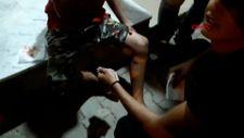 Gaziantep'te köpek saldırısına uğrayan çocuğun bacağına 10 dikiş atıldı