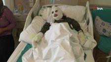 Erzurum'da 70 yaşındaki kadın tüp patlaması sonucu yandı