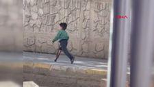 Mardin'de 5 yaşındaki Muhammet için protez bacak siparişi verildi