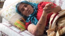 Tokat'ta komşundan dönen kadına köpek saldırdı
