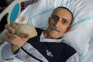 Samsun'da 37 yıllık doktoru şaşırtan taş