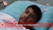 PKK bombasıyla yaralanan Suriyeli çocuk: Bizden ne istiyorlar
