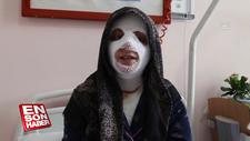 Yüzünde patlayan düdüklü tencere hastanelik etti